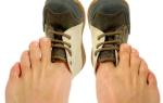Ответ на вопрос почему вредно туго затягиваться ремнем и носить тесную обувь